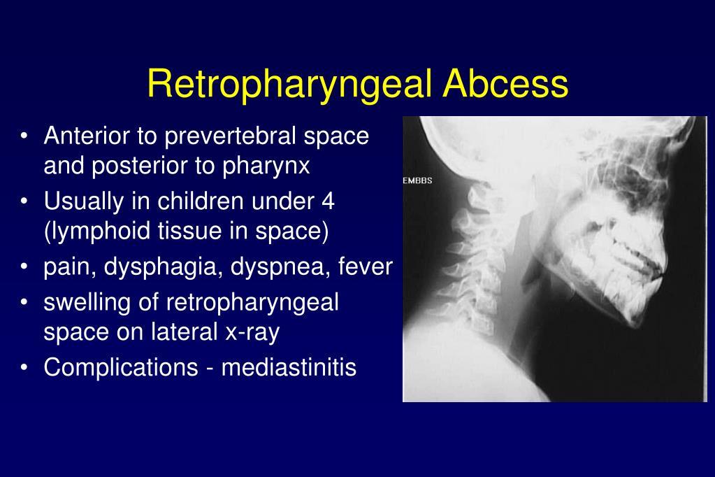 Retropharyngeal Abcess