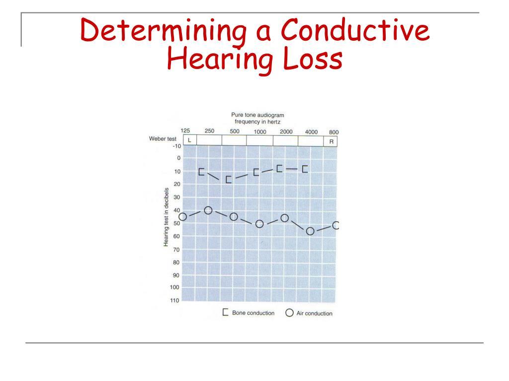 Determining a Conductive Hearing Loss