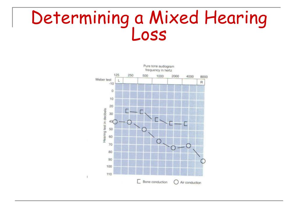 Determining a Mixed Hearing Loss