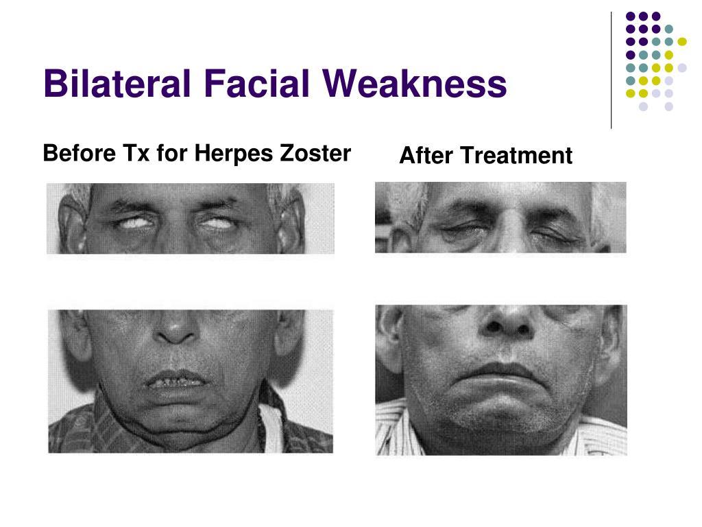 Bilateral Facial Weakness