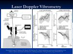 laser doppler vibrometry37