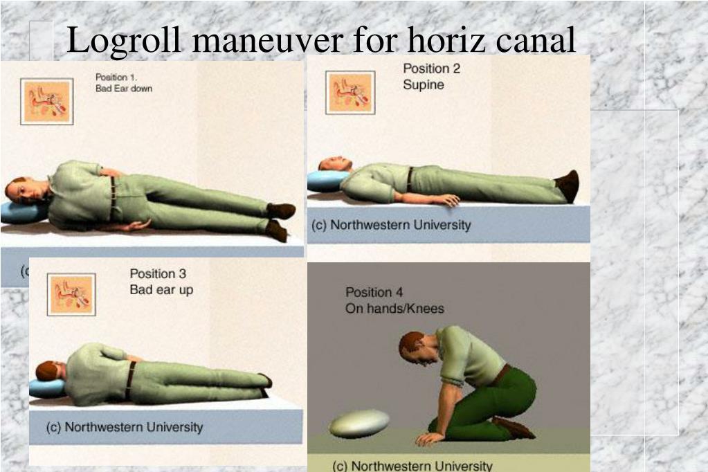 Logroll maneuver for horiz canal