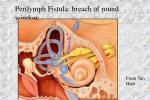perilymph fistula breach of round window