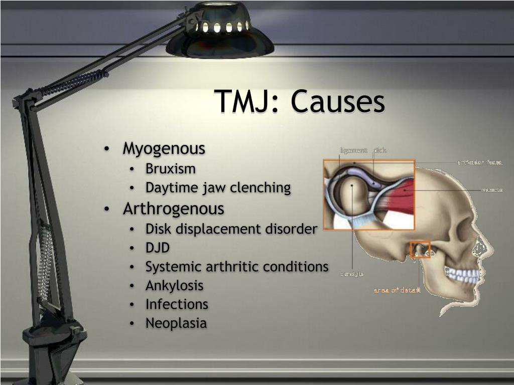 TMJ: Causes