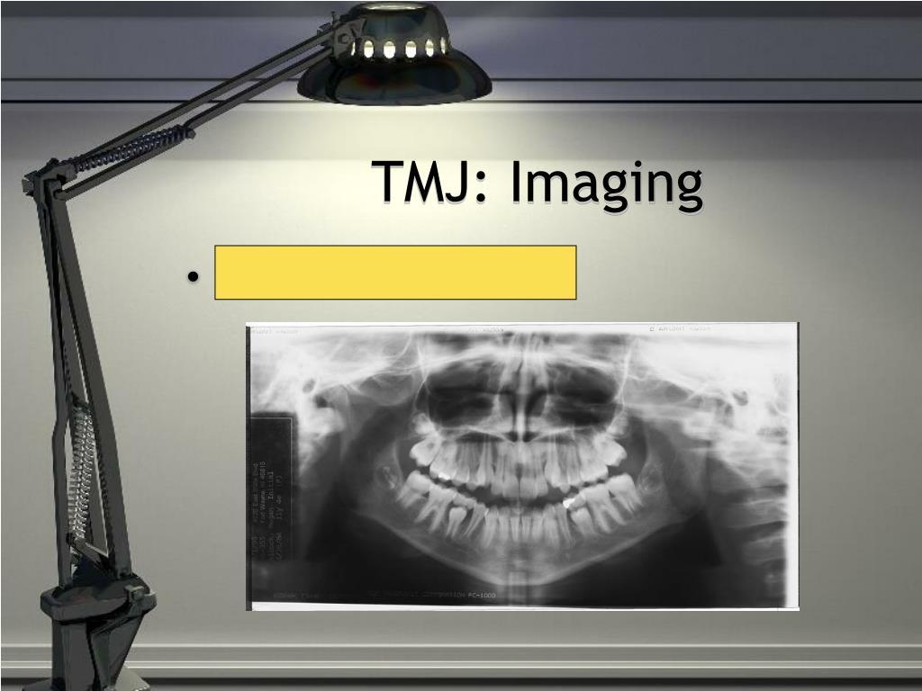 TMJ: Imaging