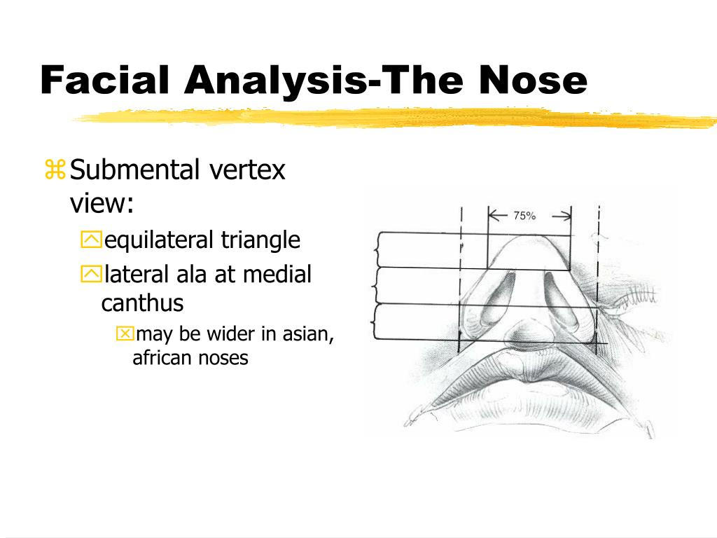Submental vertex view: