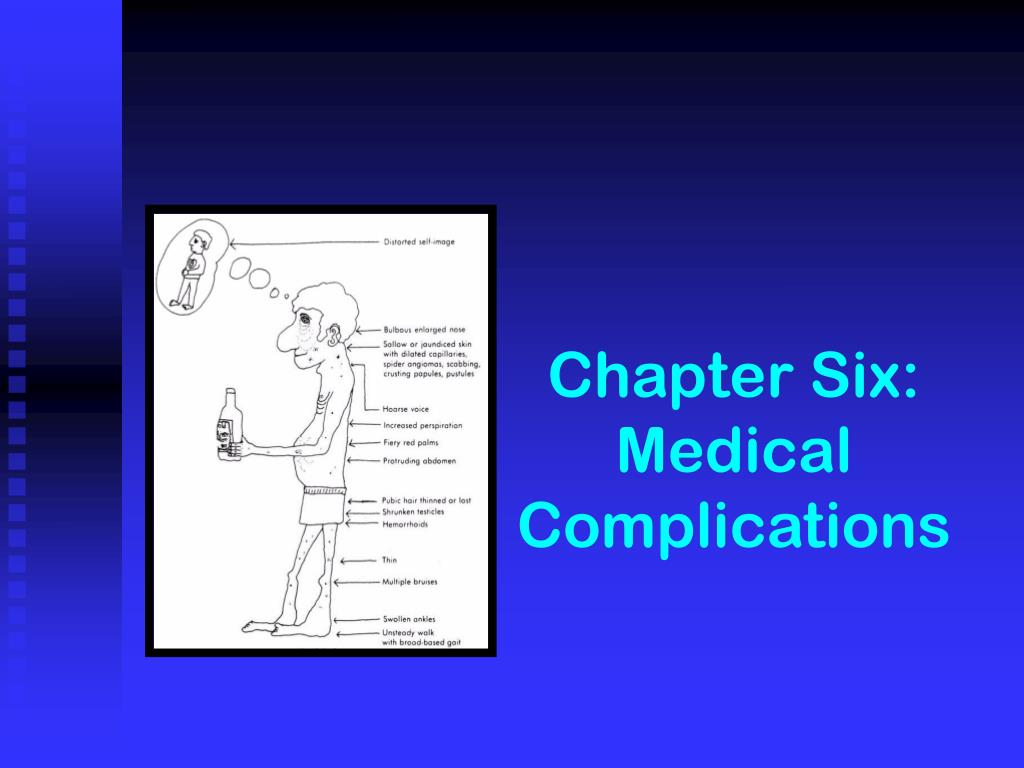 chapter six medical complications l.