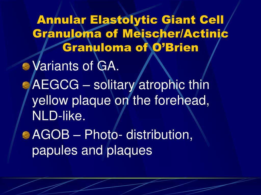 Annular Elastolytic Giant Cell Granuloma of Meischer/Actinic Granuloma of O'Brien