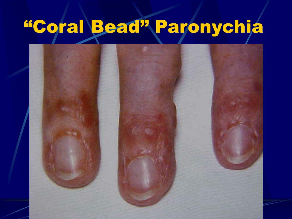 """Coral Bead"" Paronychia"