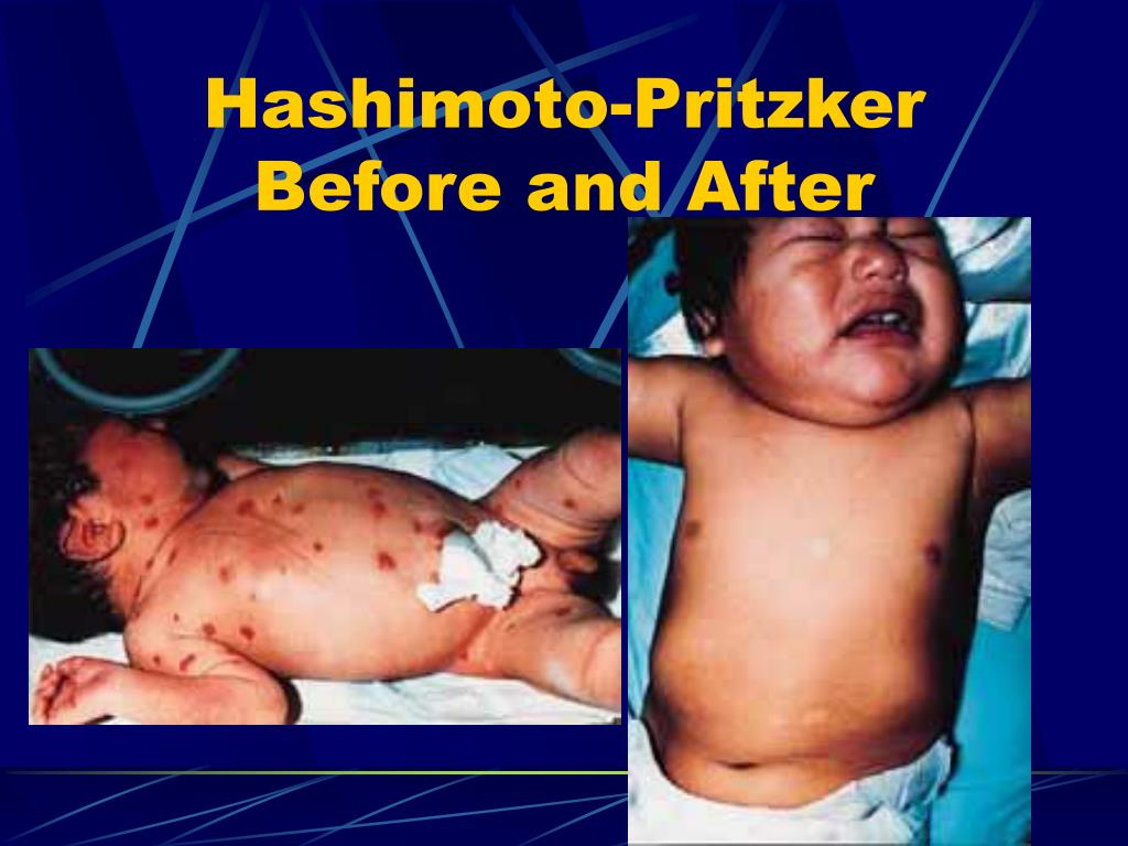 Hashimoto-Pritzker Before and After