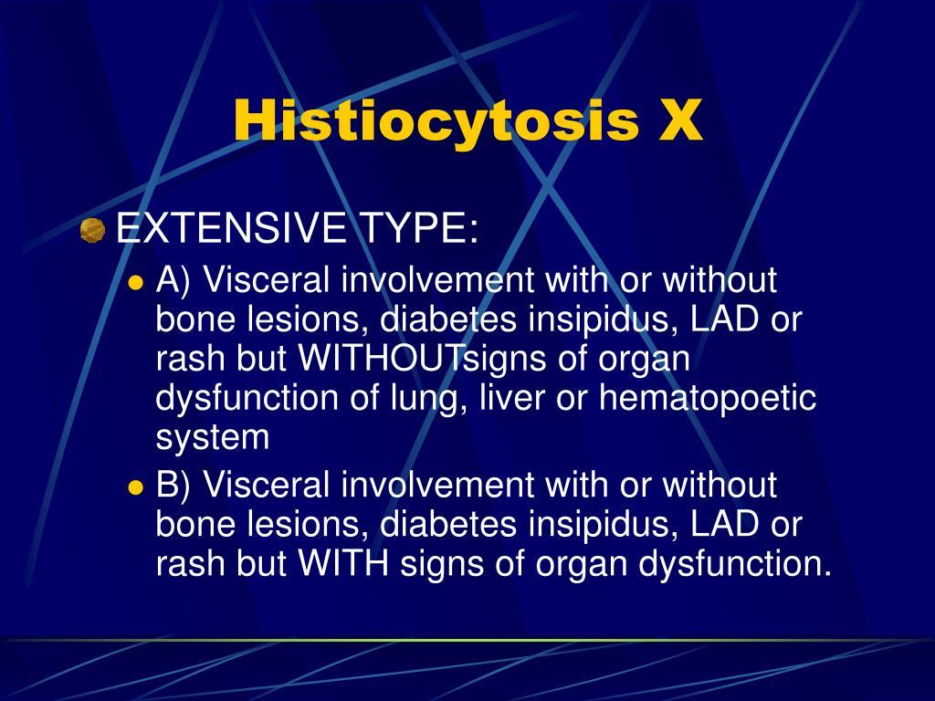 Histiocytosis X