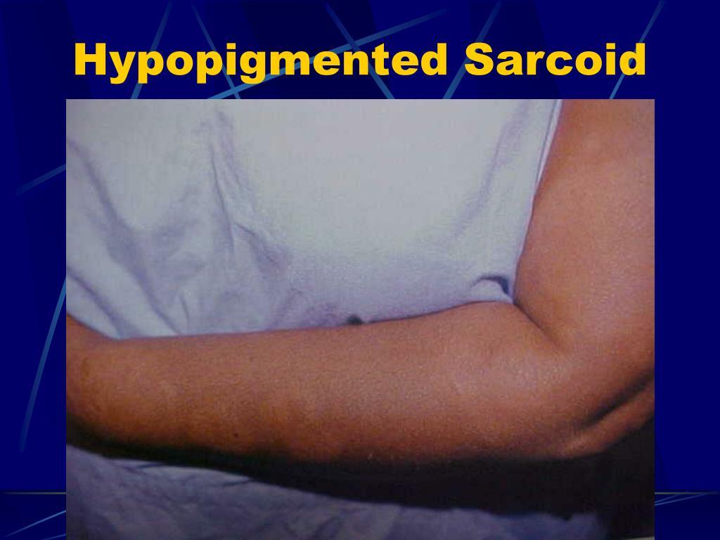 Hypopigmented Sarcoid