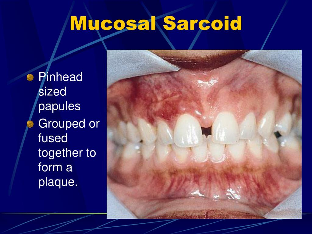 Mucosal Sarcoid