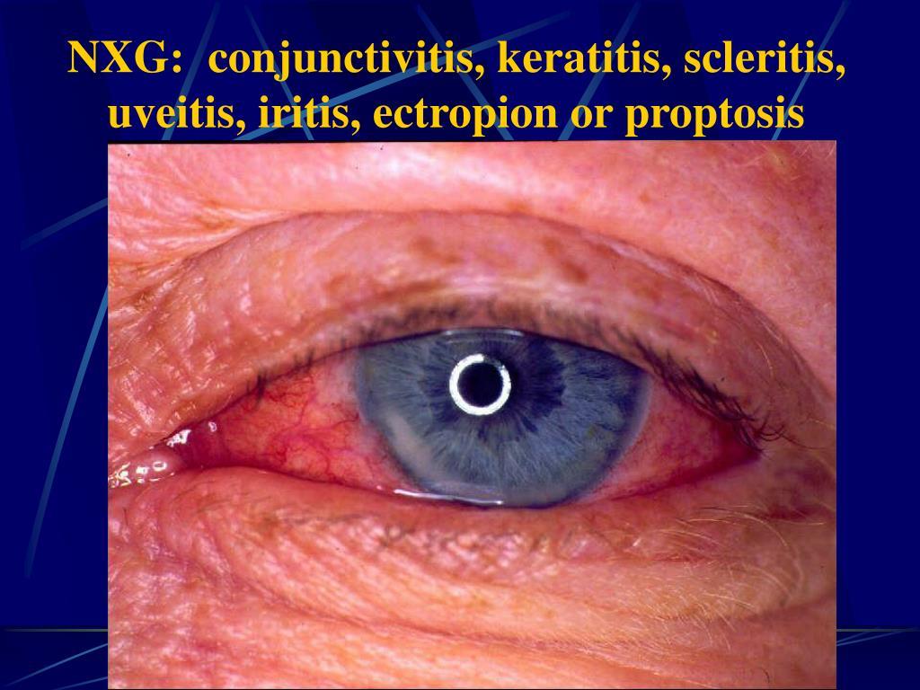 NXG:  conjunctivitis, keratitis, scleritis, uveitis, iritis, ectropion or proptosis