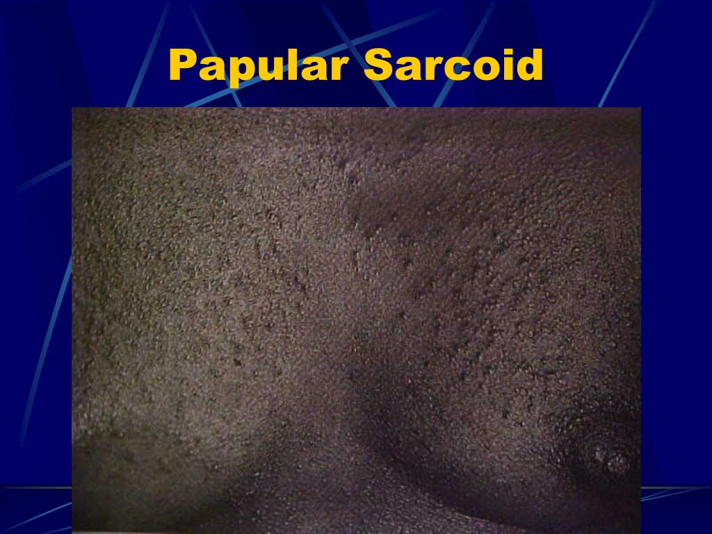 Papular Sarcoid