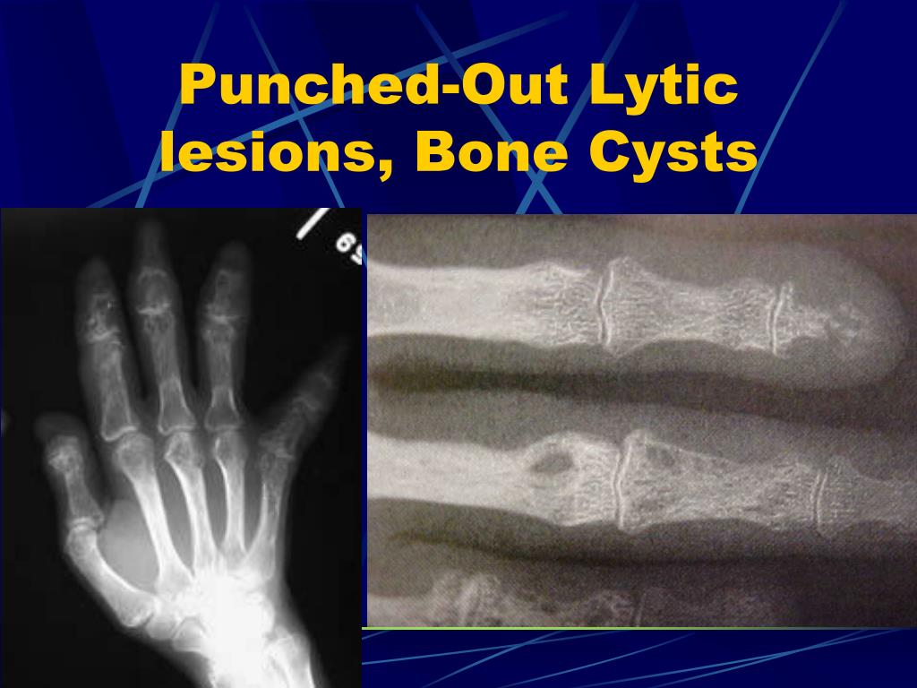 Punched-Out Lytic lesions, Bone Cysts
