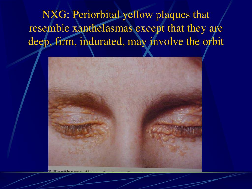 NXG: Periorbital yellow plaques that resemble xanthelasmas except that they are deep, firm, indurated, may involve the orbit