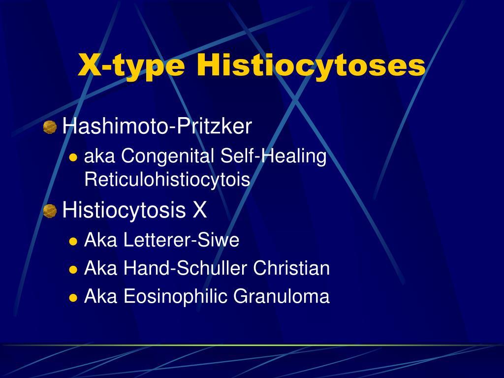 X-type Histiocytoses