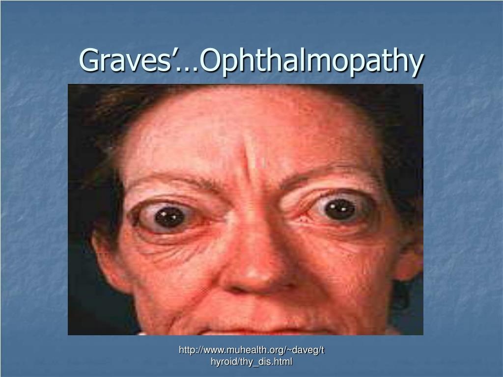 Graves'…Ophthalmopathy