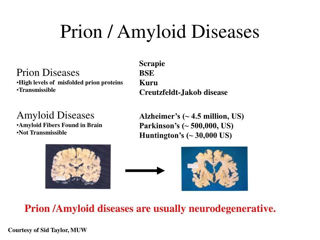 Prion / Amyloid Diseases