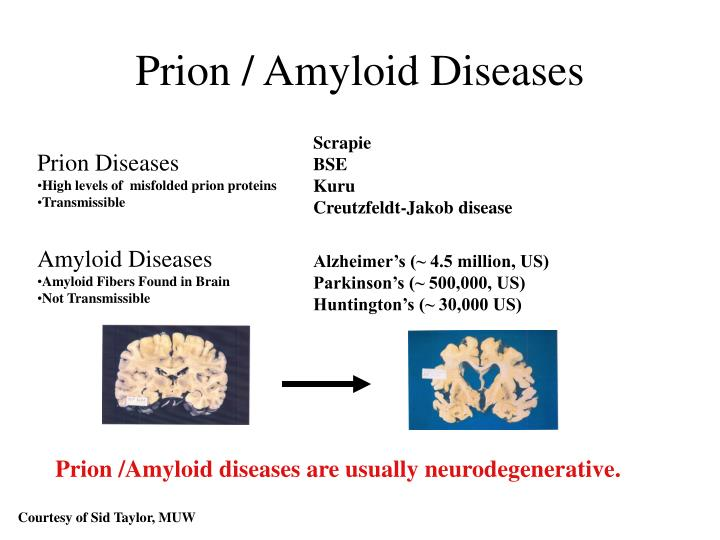 Prion amyloid diseases
