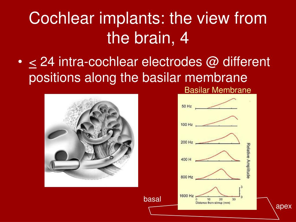 Cochlear implants: the view from the brain, 4