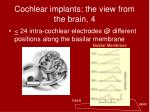 cochlear implants the view from the brain 4