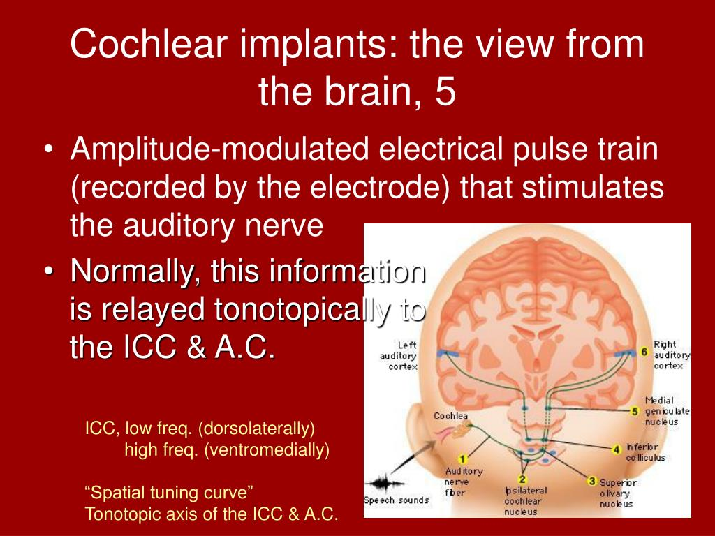 Cochlear implants: the view from the brain, 5