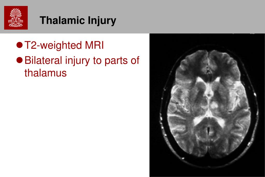 Thalamic Injury