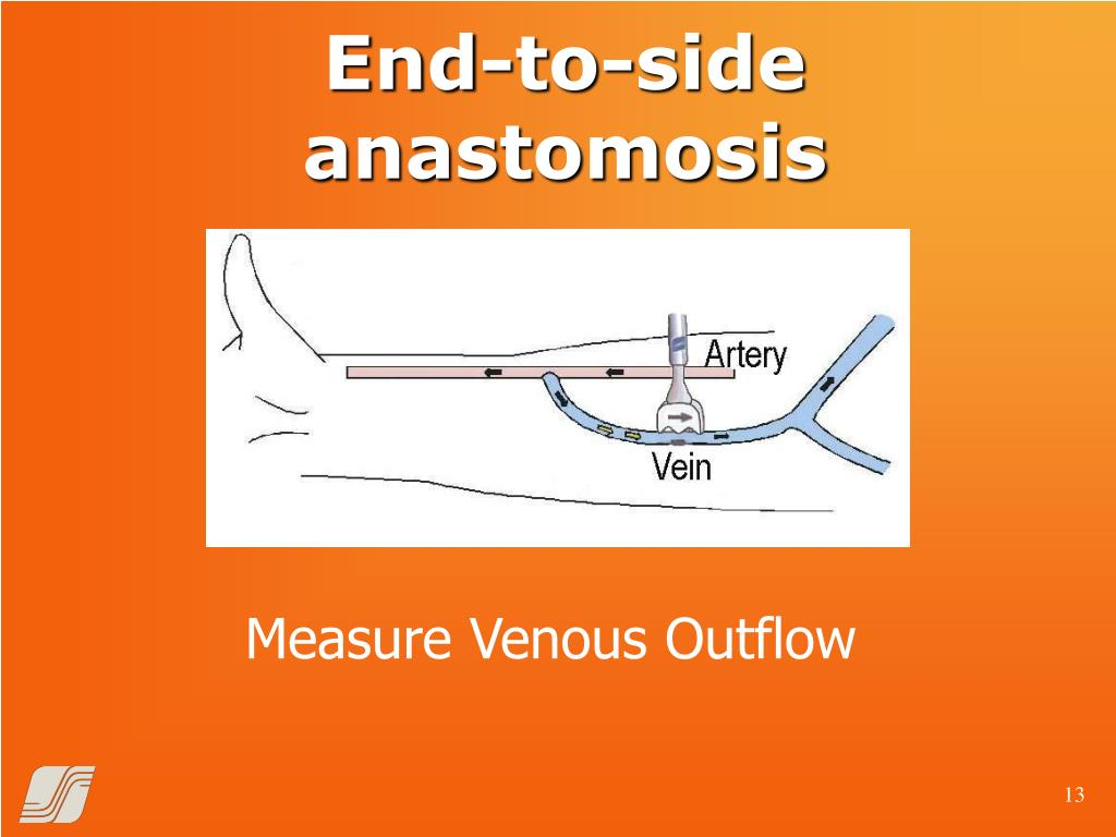 End-to-side anastomosis