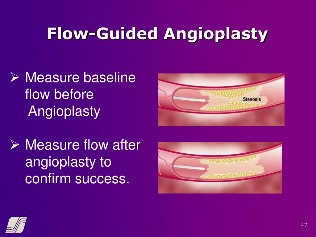 Flow-Guided Angioplasty