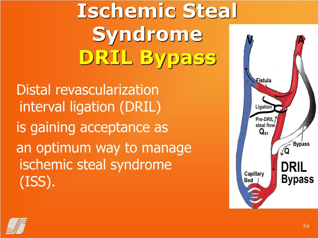 Ischemic Steal Syndrome