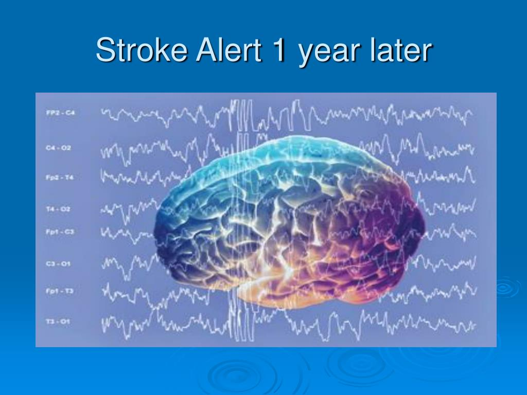 Stroke Alert 1 year later