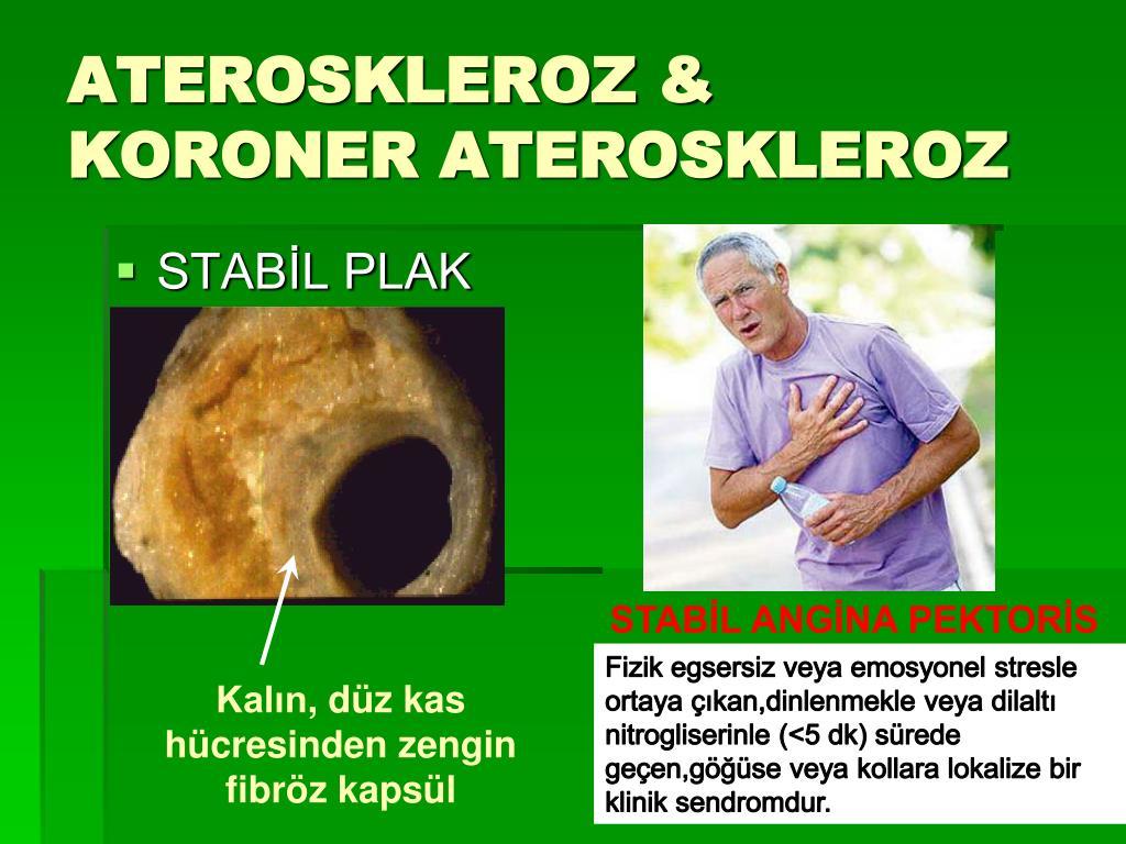 ATEROSKLEROZ & KORONER ATEROSKLEROZ