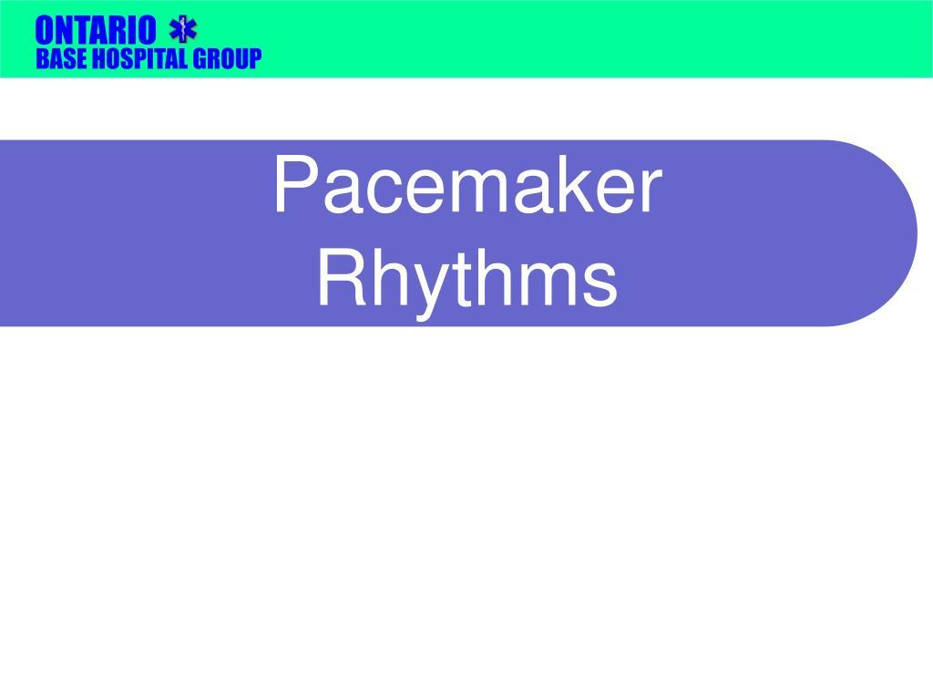 Pacemaker Rhythms