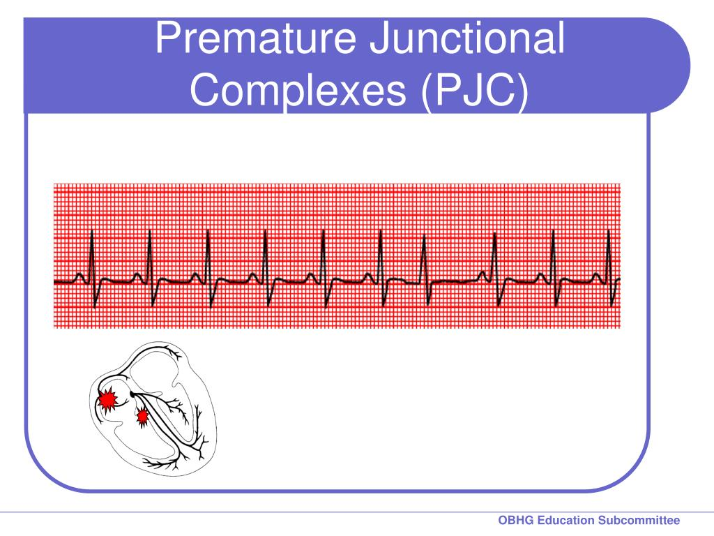 Premature Junctional Complexes (PJC)