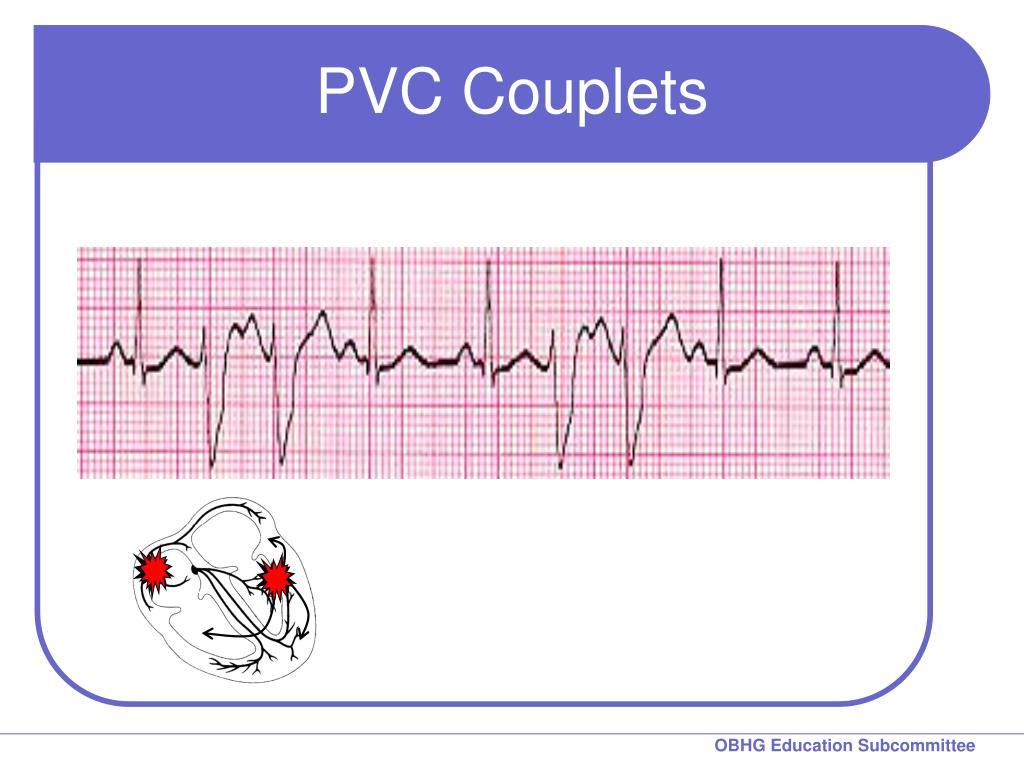PVC Couplets