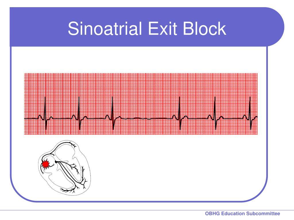 Sinoatrial Exit Block