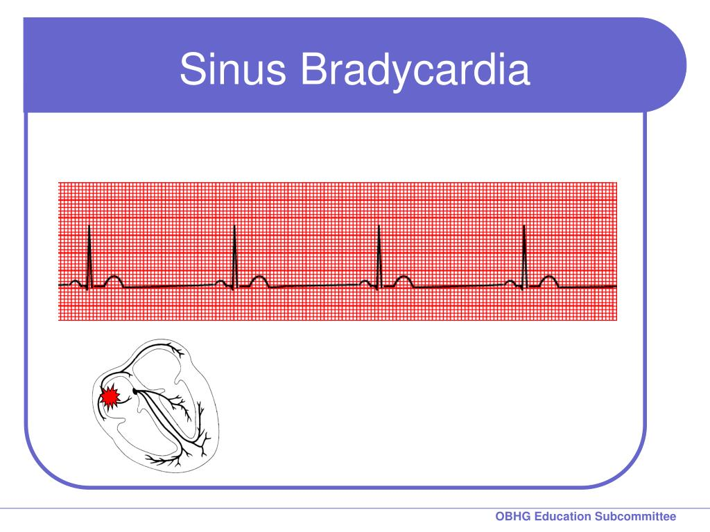 Sinus Bradycardia