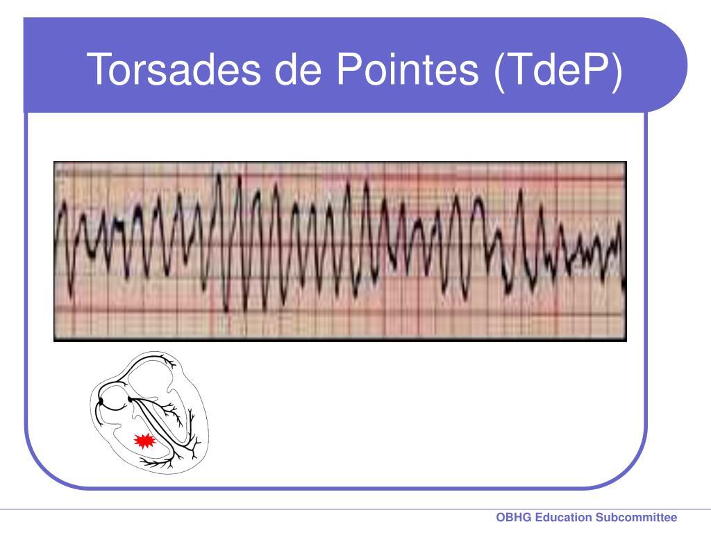 Torsades de Pointes (TdeP)
