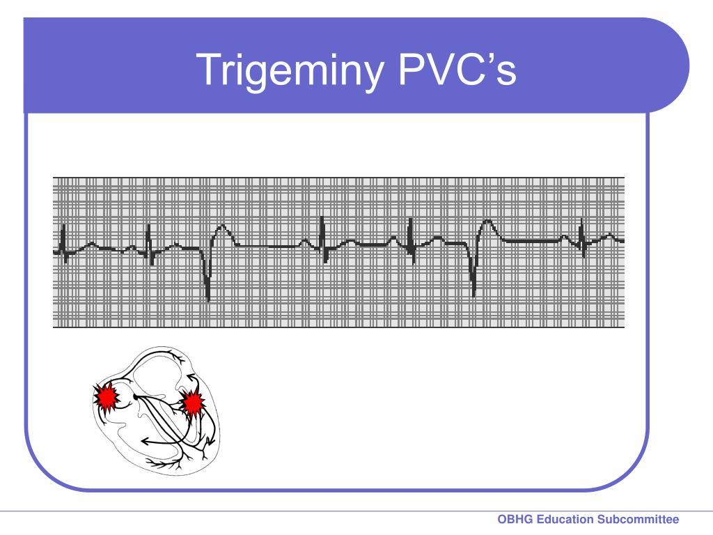 Trigeminy PVC's