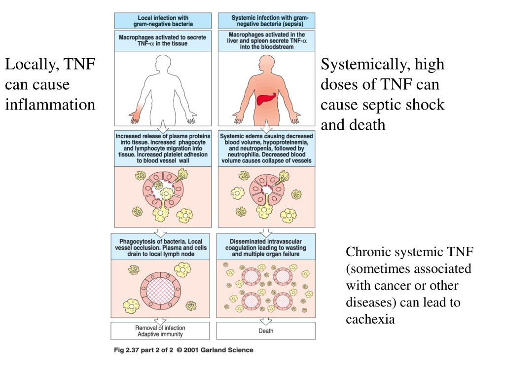 Locally, TNF can cause inflammation