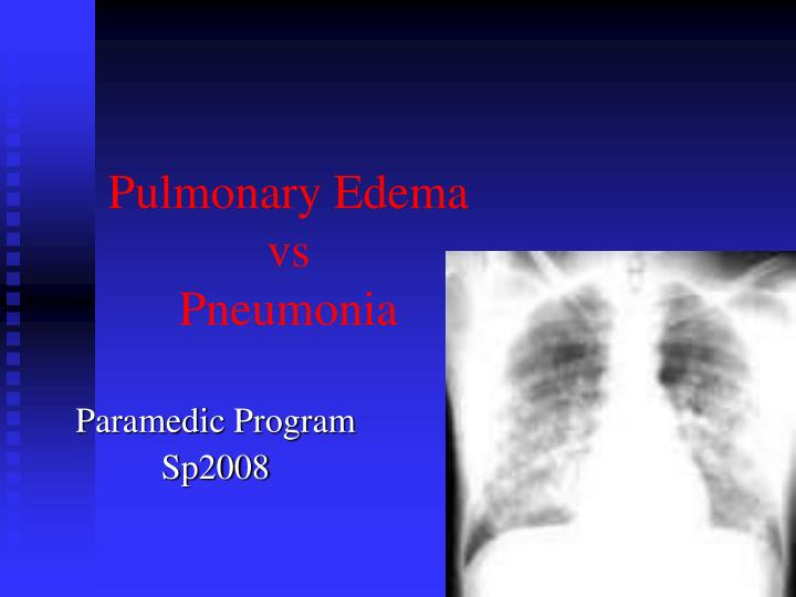 How Does Lasix Work In Pulmonary Edema
