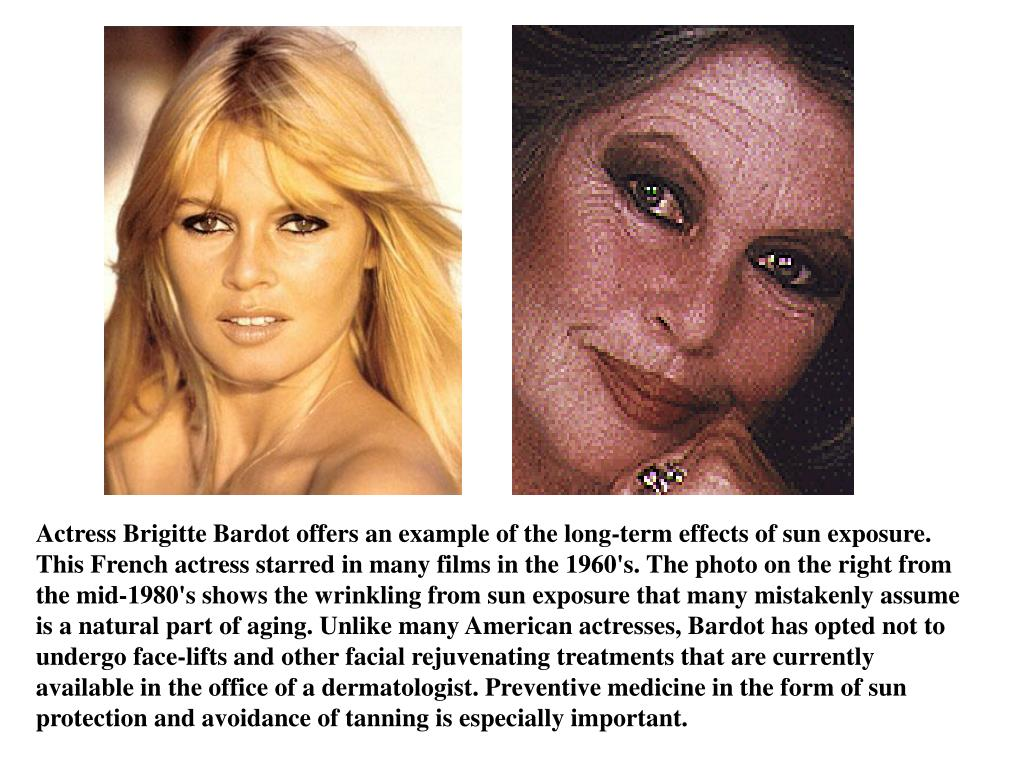 Actress Brigitte Bardot offers an example of the long-term effects of sun exposure. This French actress starred in many films in the 1960's. The photo on the right from the mid-1980's shows the wrinkling from sun exposure that many mistakenly assume is a natural part of aging. Unlike many American actresses, Bardot has opted not to undergo face-lifts and other facial rejuvenating treatments that are currently available in the office of a dermatologist. Preventive medicine in the form of sun protection and avoidance of tanning is especially important.
