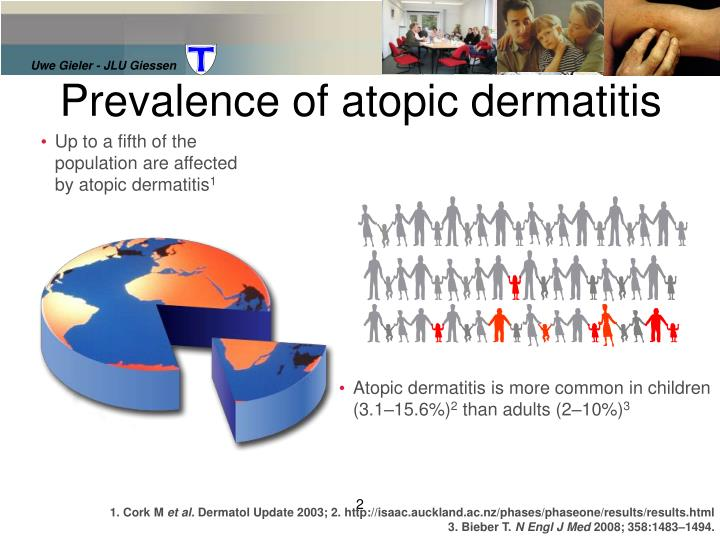 Prevalence of atopic dermatitis