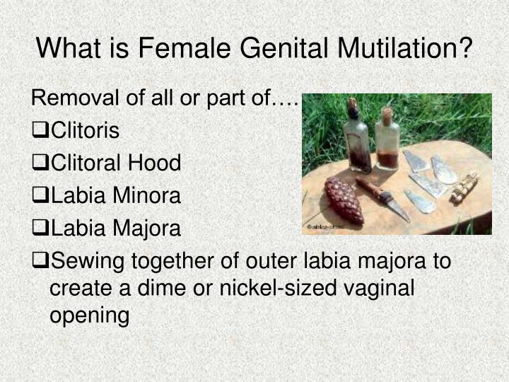What is female genital mutilation