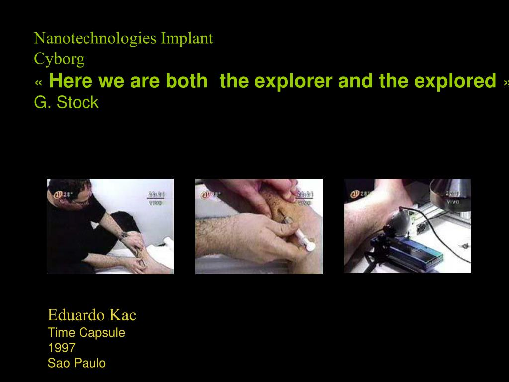 Nanotechnologies Implant