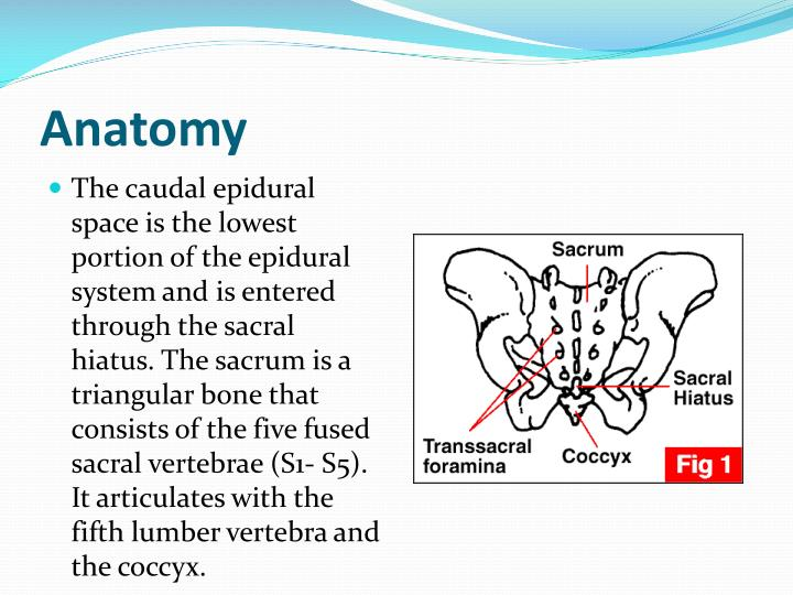 Ppt Caudal Anesthesia Powerpoint Presentation Id755679