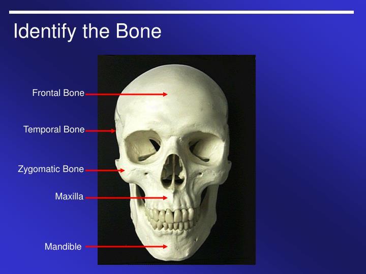 Ppt Gross Anatomy Powerpoint Presentation Id759407