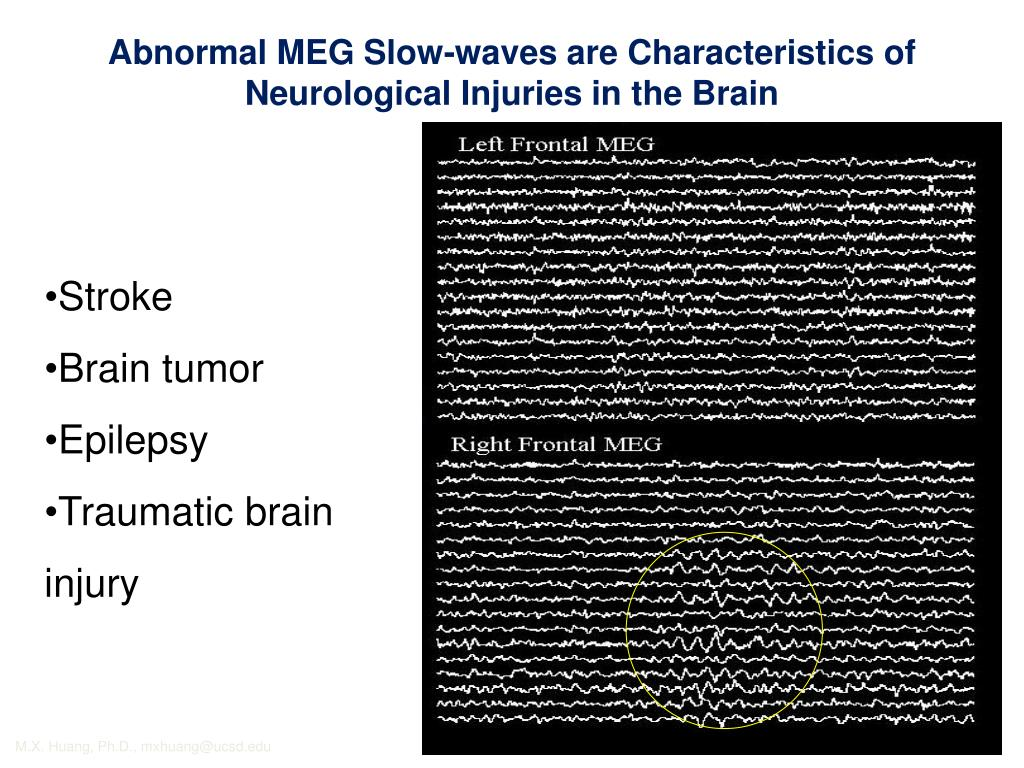 Abnormal MEG Slow-waves are Characteristics of Neurological Injuries in the Brain